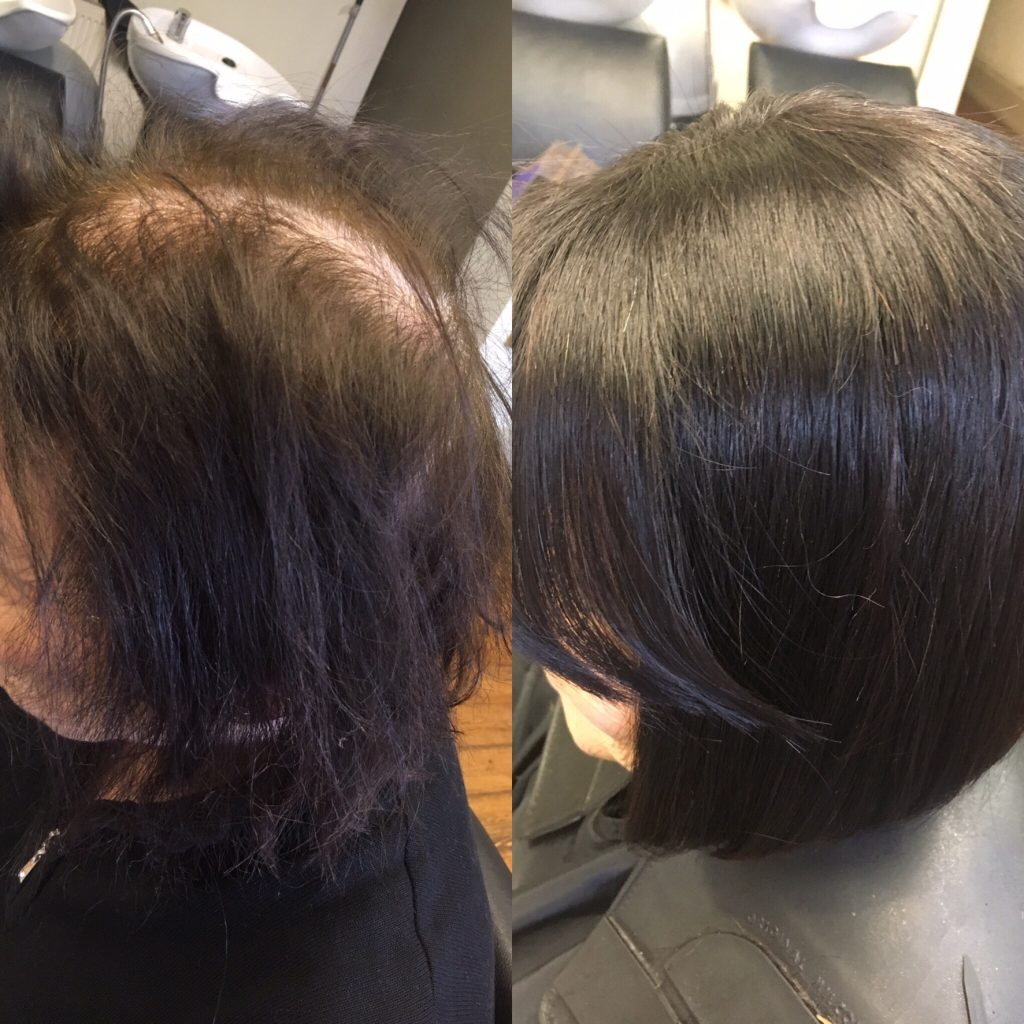 Hair Extensions Hair Loss Systems Slice Hairdressers